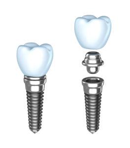 Endosteal dental implant