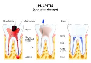 diagram showing the various steps of the root canal process