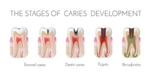 Diagram showing the various stages of tooth decay and cavity development leading to pulpitis