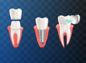 Dental crown, implant, and veneer