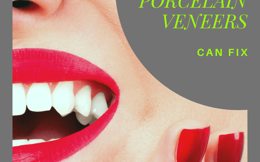 5 Things Porcelain Veneers Can Fix