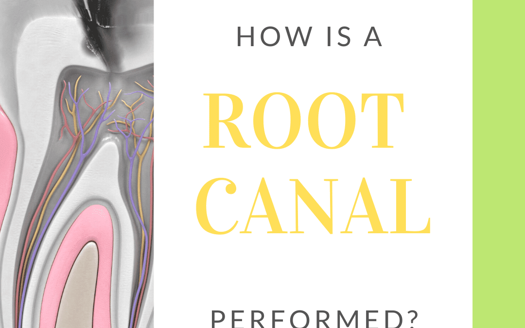 How is a Root Canal Performed?