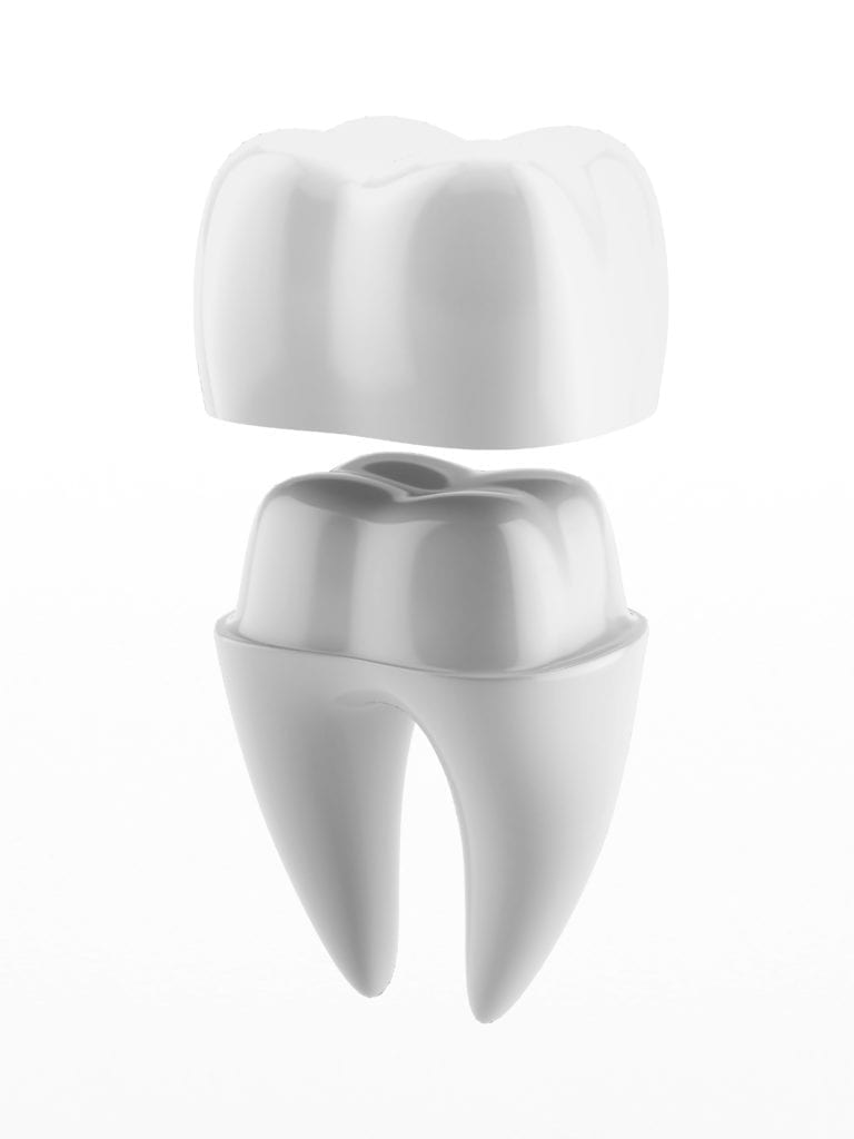 Model of a dental crown
