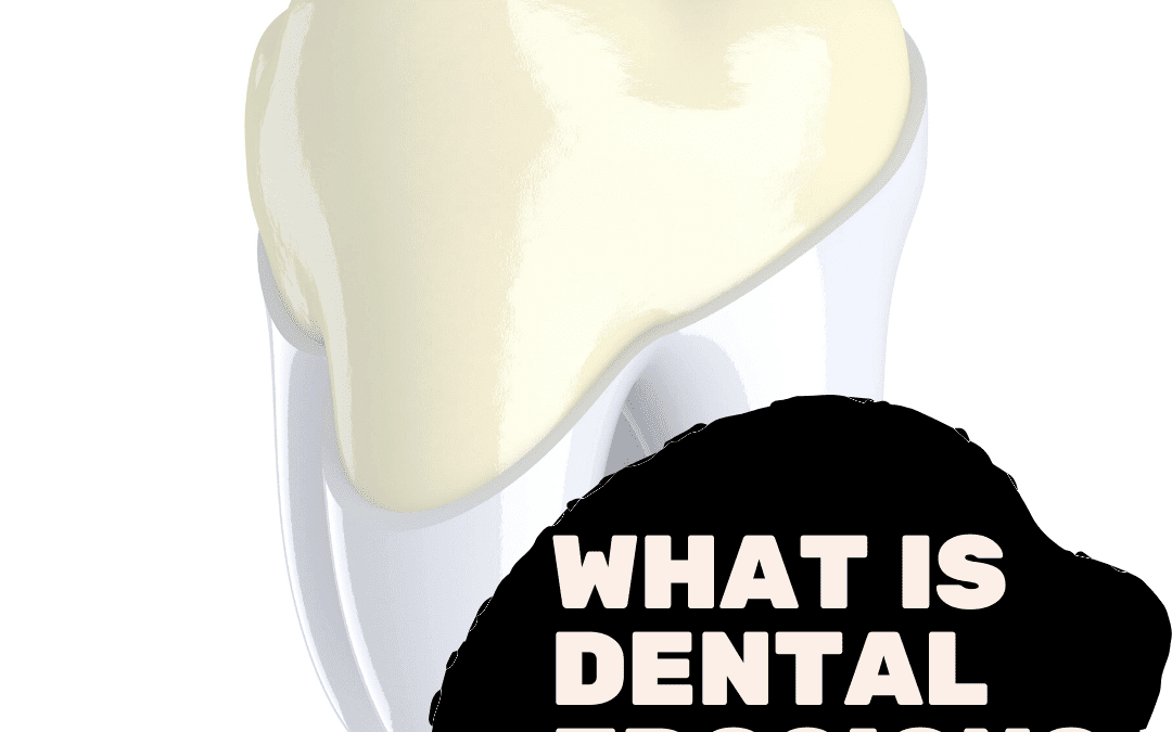 What is Dental Erosion?