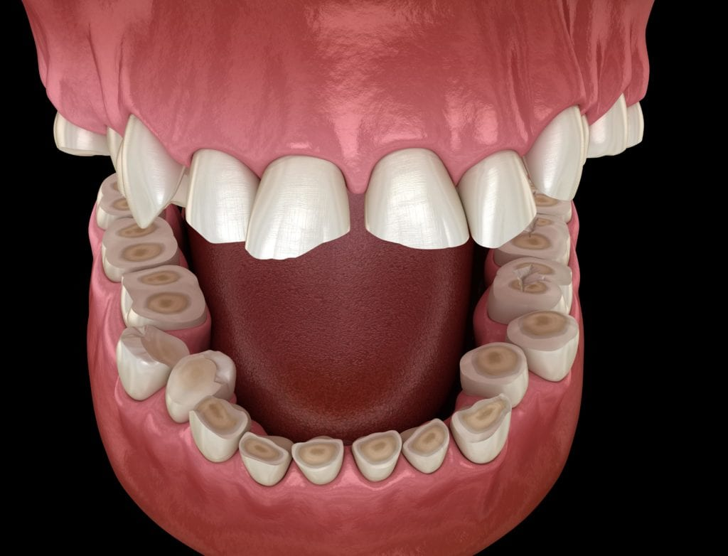 tooth enamel erosion from bruxism